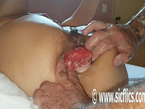 Prolapse Ass – Husband hardcore stretched wifes big anal prolapse after double fisting