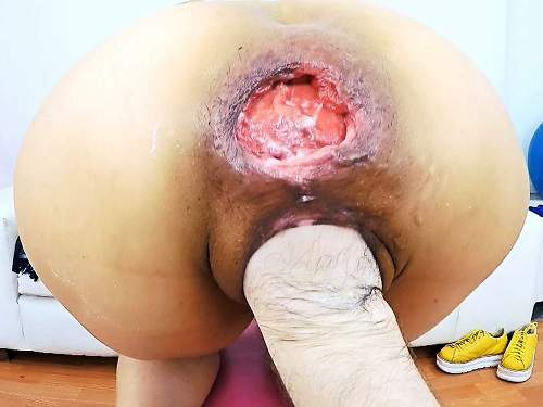 Pussy Fisting – Anna asshole destruction – FullHD anal prolapse video