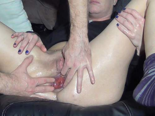 Couple Fisting – Anal rosebud loose husband after anal fisting