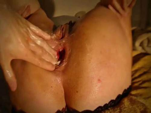 Prolapse – Wife gets anal fisting to sweet prolapse closeup homemade
