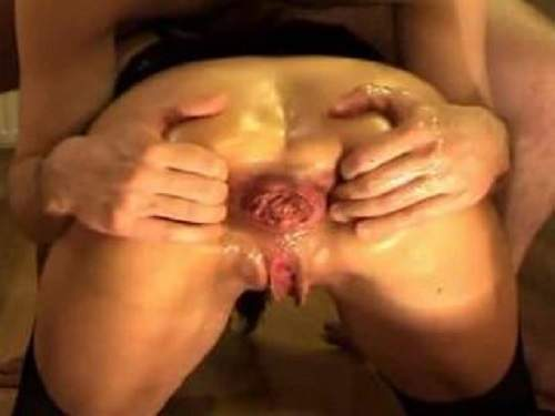 Prolapse – Amateur wife gets fisted and ball in prolapse asshole new 2017