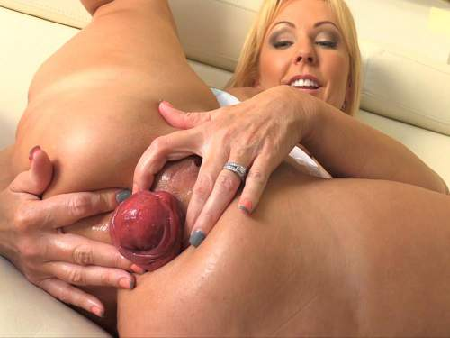 Prolapse – Huge anal prolapse loose mature with huge tits
