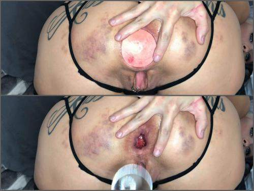 Closeup – LilySkye huge glass anal plug and balls in gaping hole