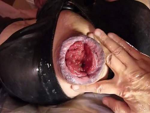 anal prolapse porn,big anal prolapse,huge anal prolapse,stretching prolapse,ruined anal,gays porn,fisting video,maledom porn
