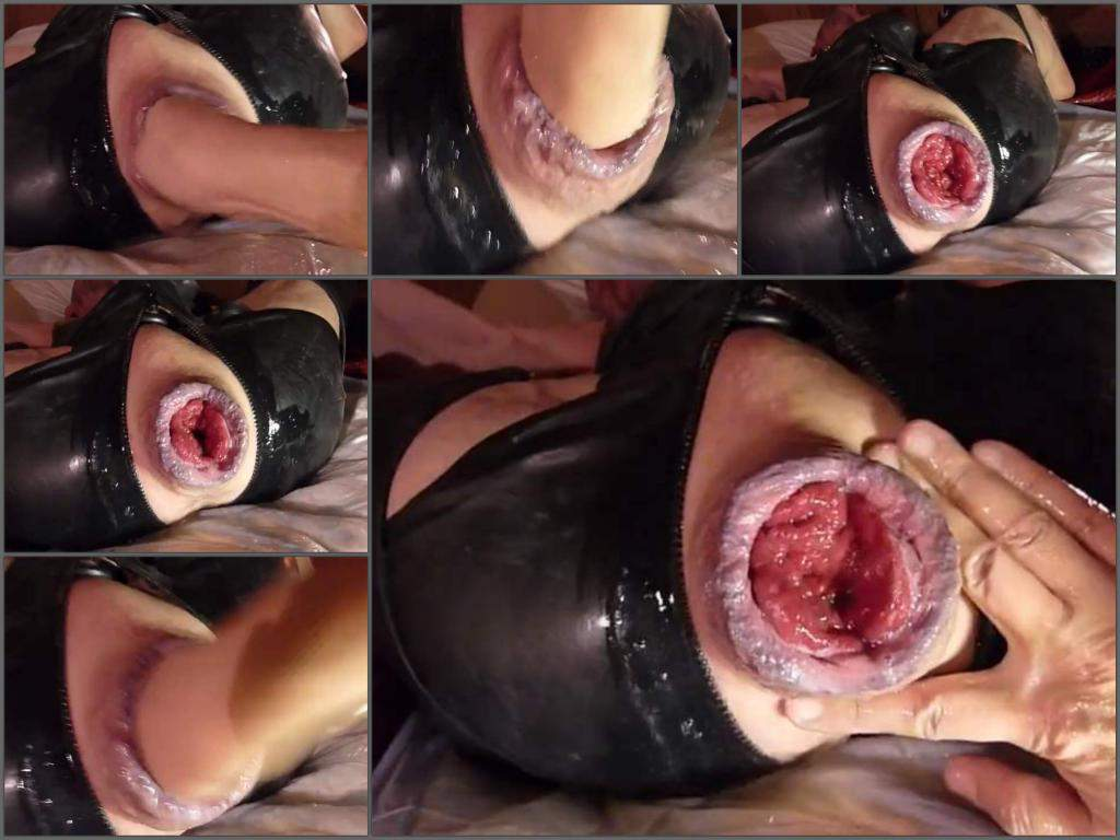 anal prolapse porn,big anal prolapse,huge anal prolapse,stretching prolapse,ruined anal,gays porn,fisting video,maledom porn,gaydom,gay domination