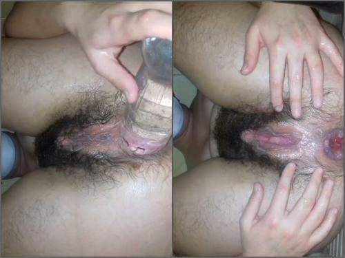 Amateur – Hairy pussy wife anal rosebutt loose with plastic bottle
