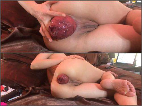 Dirty Wife – Amateur skinny wife show her really shocking size prolapse anal