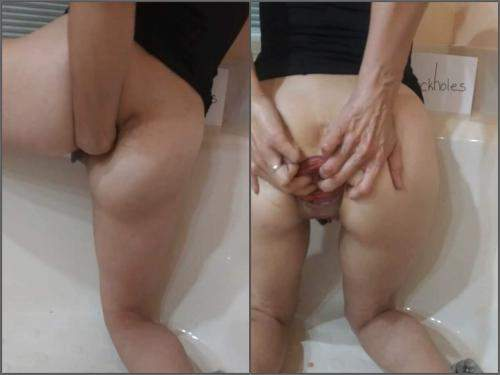 Anal Prolapse – Large labia girl anal prolapse loose in the barhroom