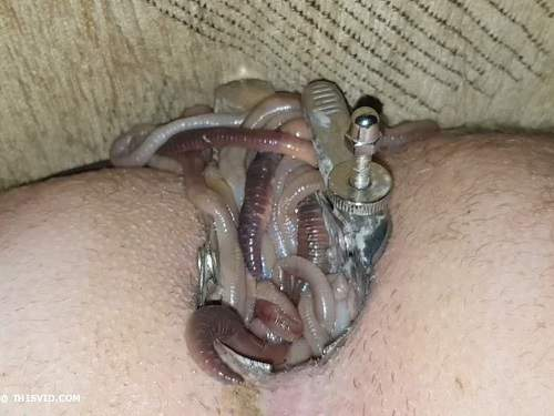 Speculum Examination – Maggots penetration in stretching speculum asshole my husband