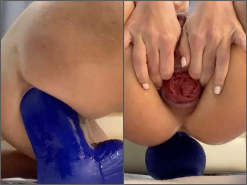 Anal Insertion – Huge labia busty wife fully anal insertion bad dragon toy in prolapse ass