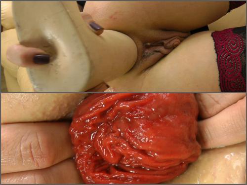 Huge Dildo – Sexy MILF Sindy Rose enjoy her anal prolapse with huge dildo