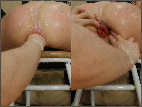Dismoralica anal fist untill my ass prolapsed,Dismoralica deep fisting,ruined anal,ruined anus,anus hole loose,russian xxx,deep fisting sex,deep fisting video,girl xxx,shocking fisting video