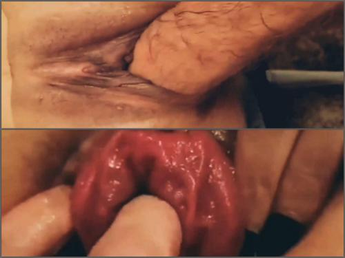 deep fisting,fisting sex,girl gets fisted,vaginal fisting video,vaginal prolapse porn