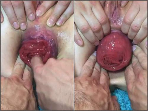 Anal Insertion – Tawney Mae POV show her giant anal prolapse very close-up