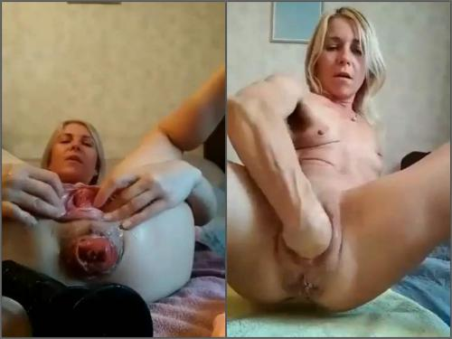 Double Anal – Sexy MILF Sindy Rose vaginal prolapse and anal loose during object insertion